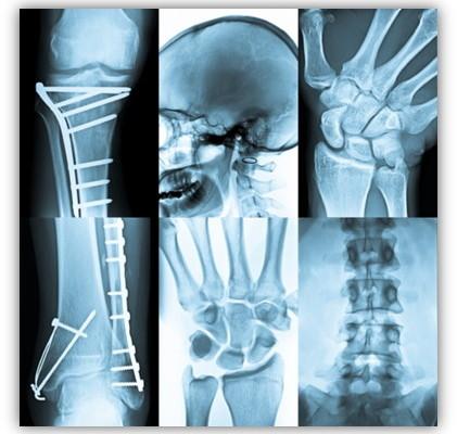 immagine.x.articolo.radiologia.tradizionale