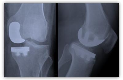 immagine.protesi.ginocchio.art.albanese