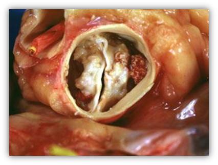 immag.stenosi.aortica.art.dott.gambelli