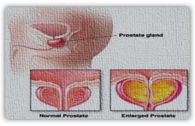 immag.prostata.art.dr.lupattelli