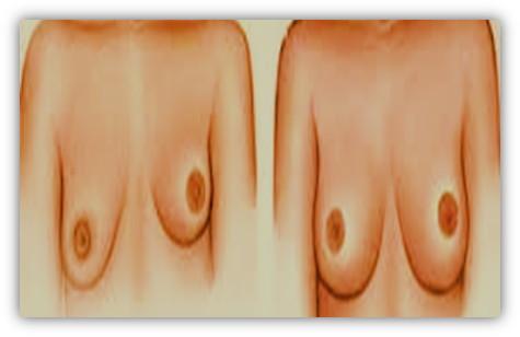 immag.asimmetria.seno.art.dr.la.monaca