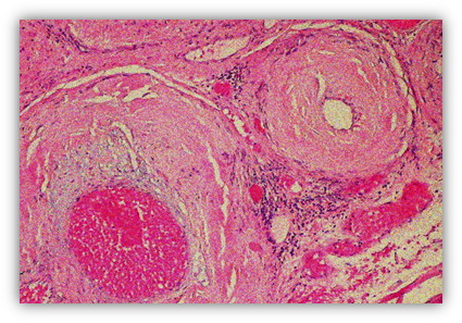 immag.amiloidosi